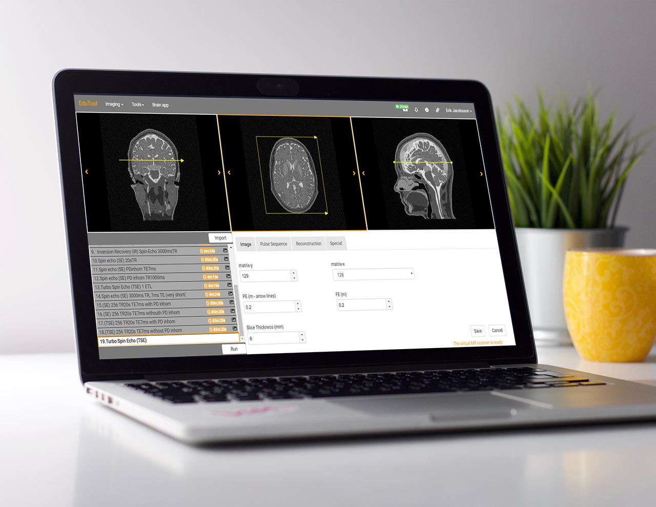 Corsmed MRI simulation platform