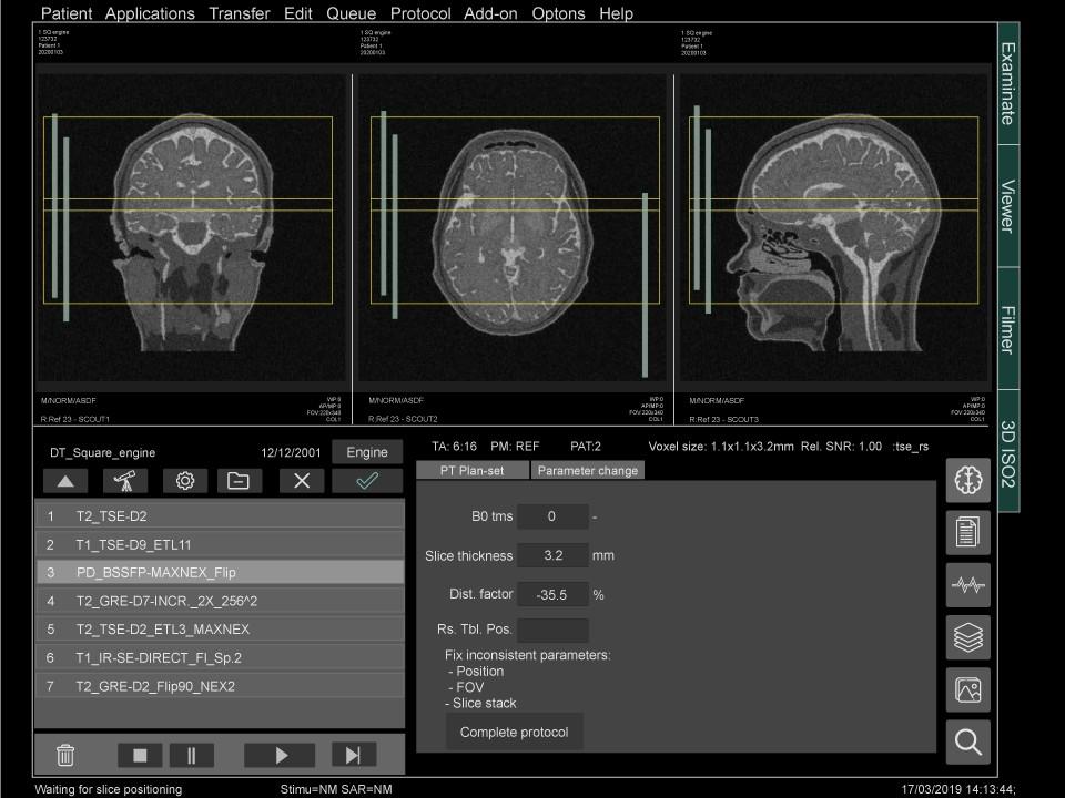 Medical industry MRI software